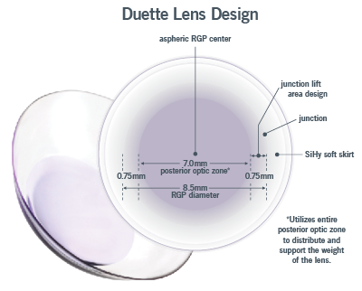 how to put in duette contact lenses